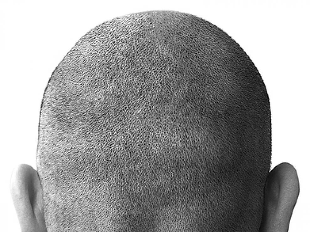 La alopecia es más común en hombres que en mujeres.