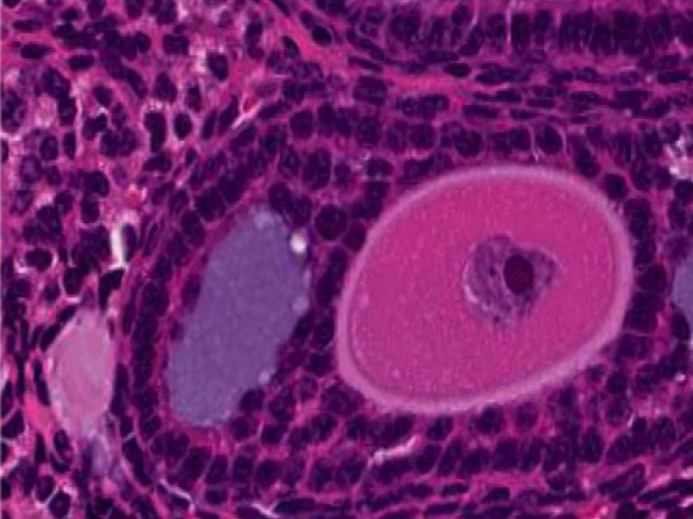 Esta foto de los folículos antrales es una forma de medir la reserva ovárica.