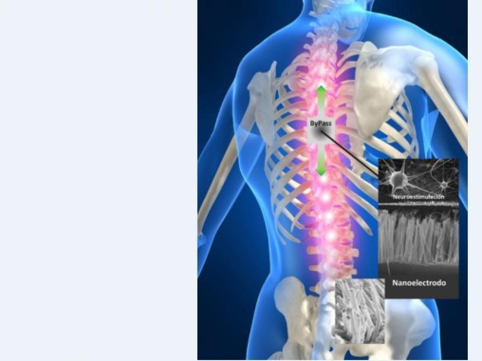 Esquema del by-pass que van a desarrollar los investigadores para aplicarlo en lesiones medulares