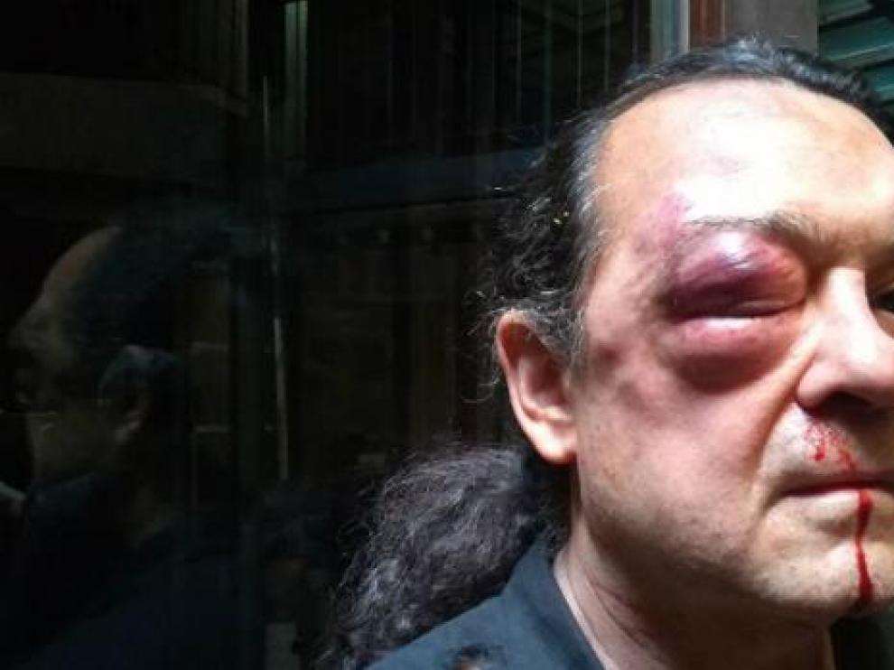 Imagen de Barredo tras la agresión.