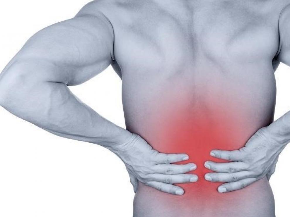 Los cálculos renales pueden provocar dolores intensos en la zona baja de la espalda.