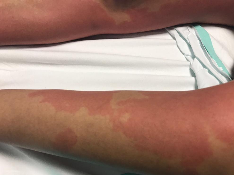 Efectos de una intoxicación por histamina en Zaragoza.