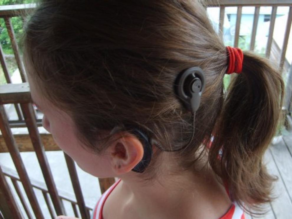 El implante coclear es uno de los mayores avances en el tratamiento de la sordera.
