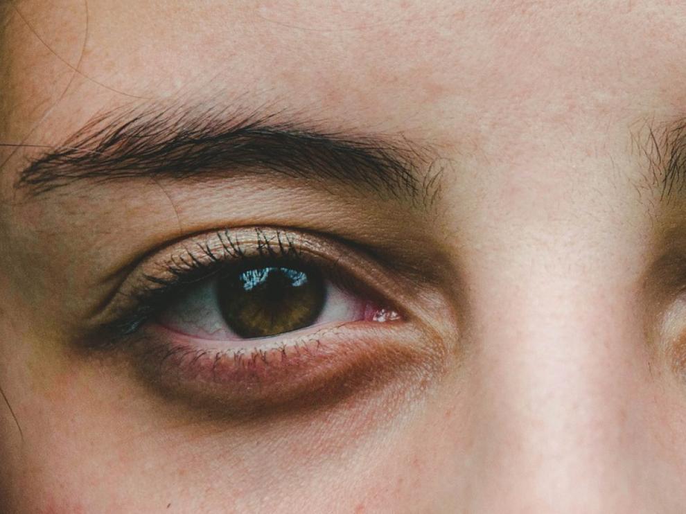 Tocarse los ojos en exceso puede provocar la aparición de ojeras.