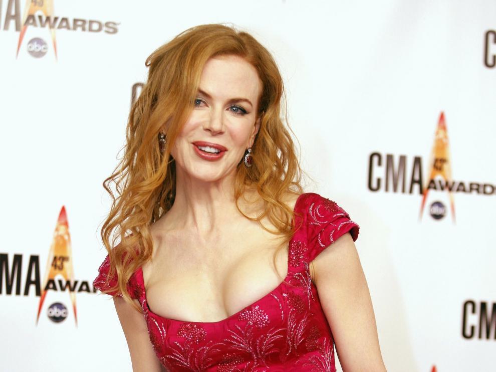 Lo peor: Nicole Kidman (2014), poco atractiva con un vestido que solo le dejó sin respiración a ella.