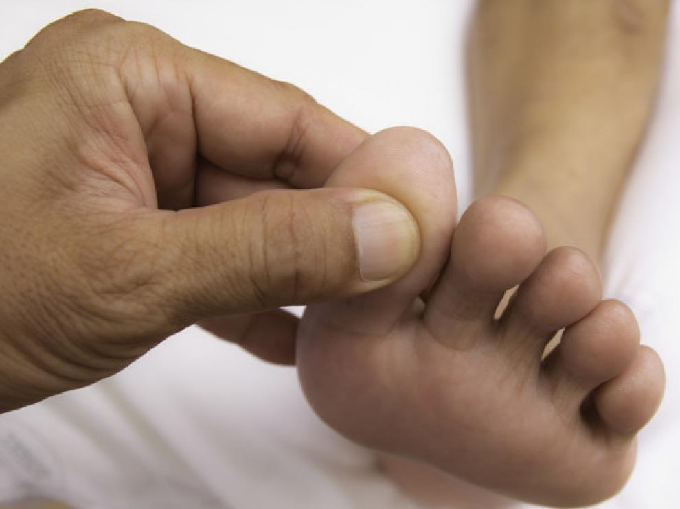 Un zapato demasiado prieto que comprima los dedos del pie, arrancar las uñas en lugar de cortarlas o que se tenga alguna deformidad en la zona puede favorecer la aparición de esta afección.