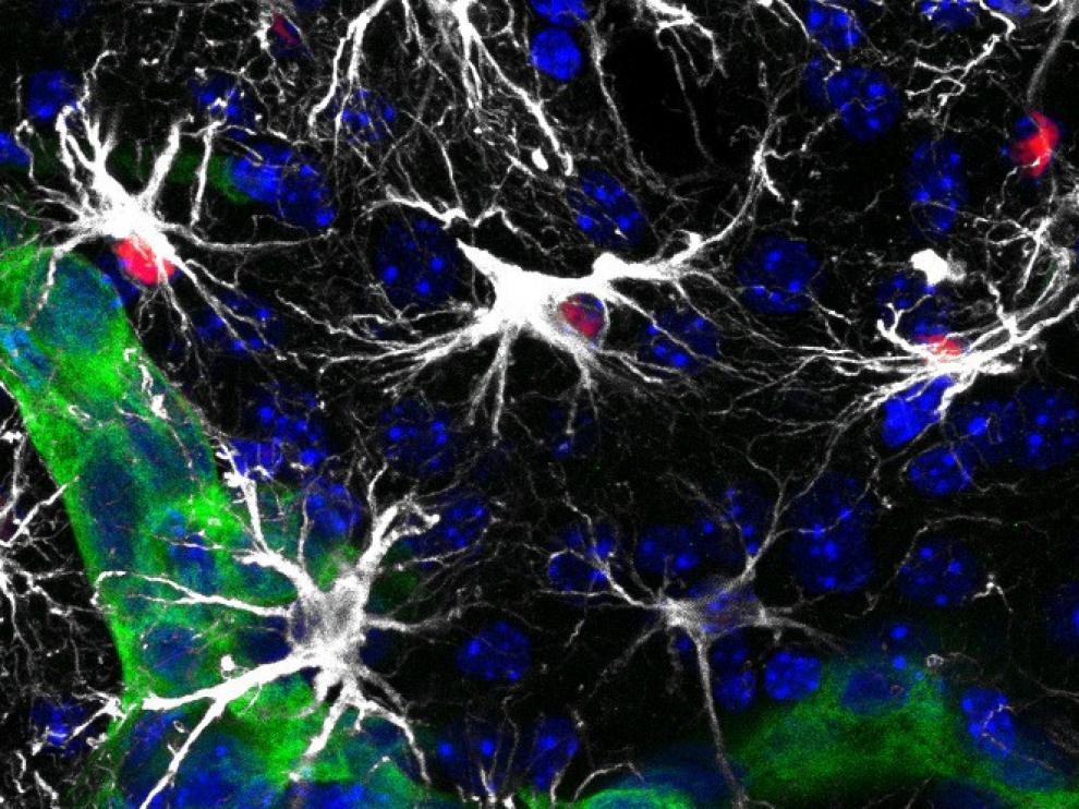 Células metastásicas en el cerebro (verde) rodeadas por astrocitos reactivos (blanco). Algunos con la vía de Stat3 activada (rojo)