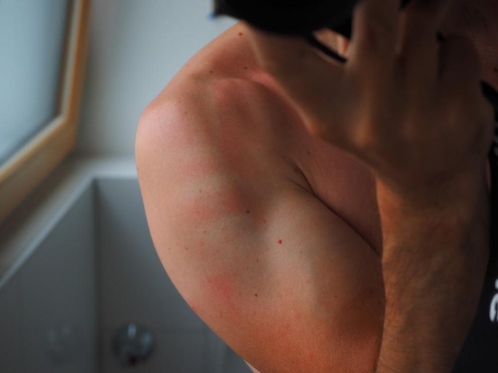 Utilizar crema solar es indispensable para evitar estas molestas irritaciones.