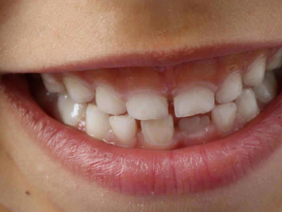 Los dientes definitivos comienzan a salir a los ocho años.