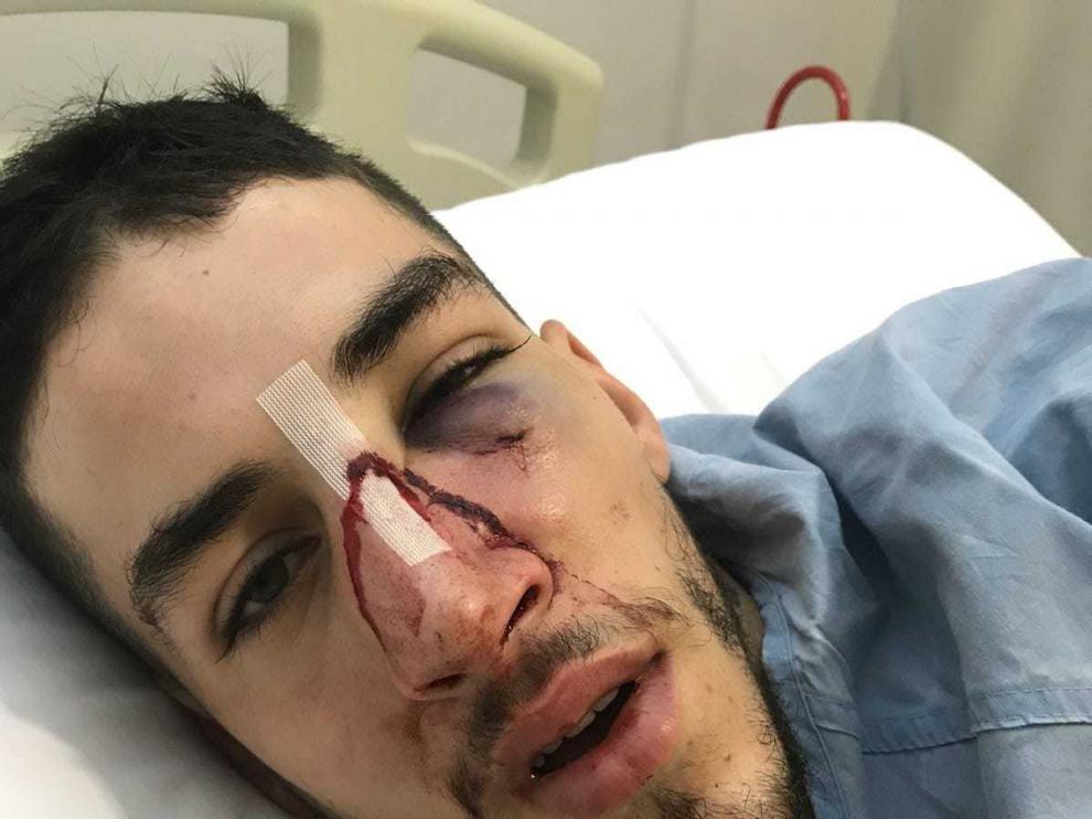 El jugador agredido tuvo que ser operado en un hospital de fractura facial y maxilar.