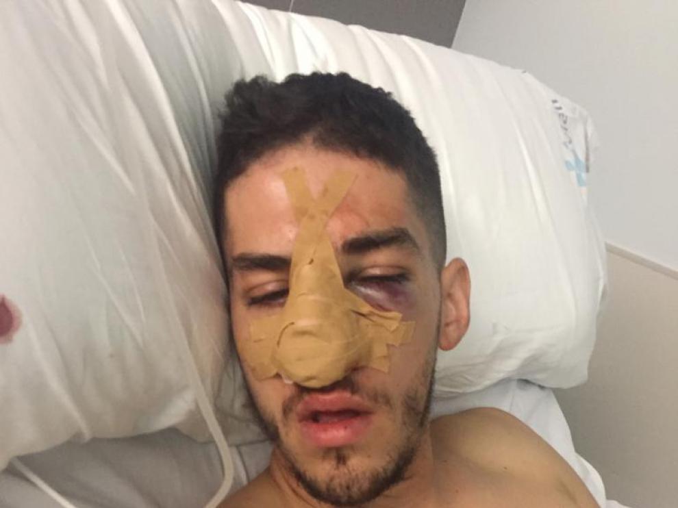 El jugador del Miralbueno lesionado tuvo que pasar por el quirófano al sufrir fractura facial y nasal.