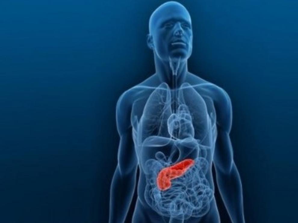 Sanidad alerta de la aparición de casos de pancreatitis aguda asociada al uso de dos fármacos