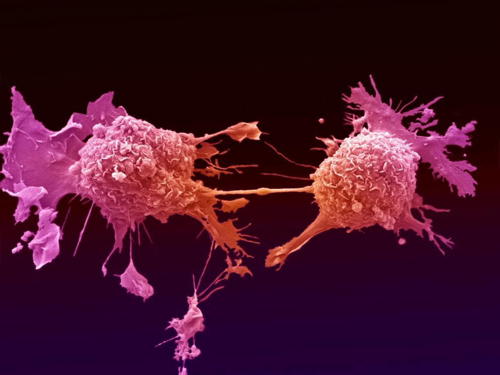 Células de cáncer de pulmón dividiéndose, unidas por un delgado hilo de citoplasma