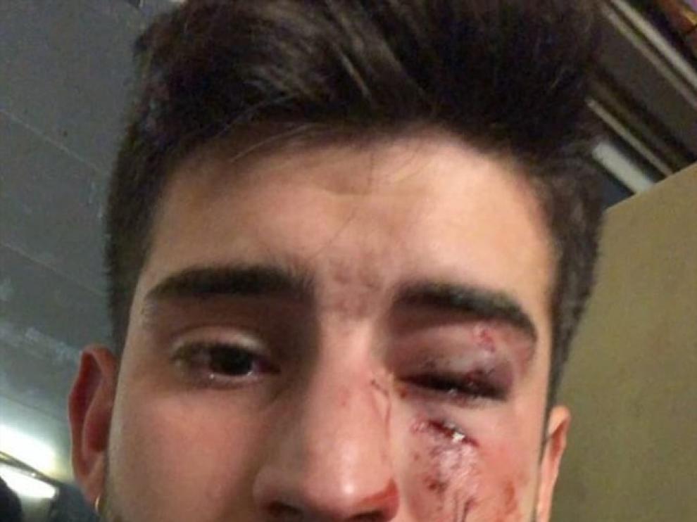 El joven agredido ha subido esta imagen a las redes sociales.