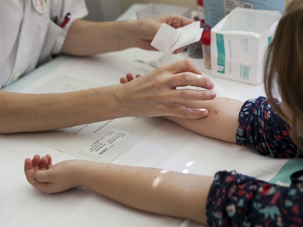 ARAGON PRUEBAS DE ALERGIAS EN EL HOSPITAL CLINICO DE ZARAGOZA / 02-03-2017 / FOTO: ARANZAZU NAVARRO