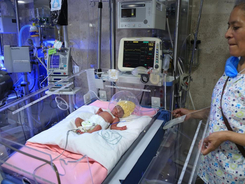 Uno de los quintillizos nacidos en Ciudad de México.