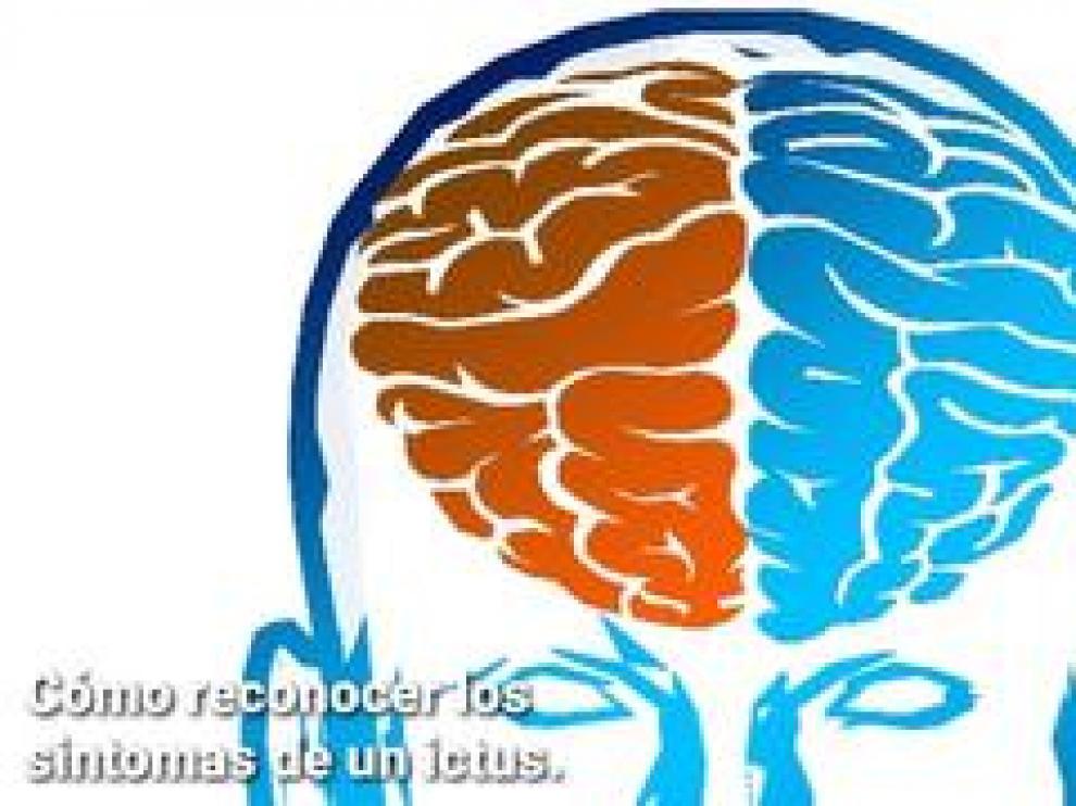 La rápida identificación de los síntomas de un accidente cerebrovascular puede salvar la vida del paciente.