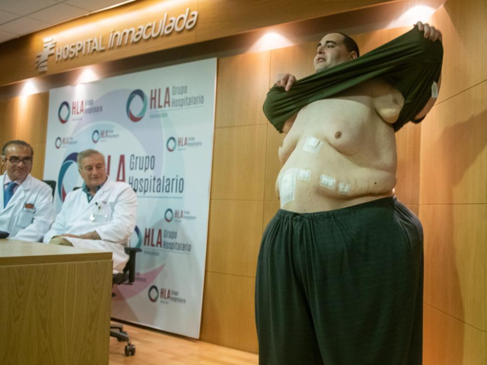 Teo Rodríguez, un joven valenciano de 34 años con obesidad mórbida que llegó a pesar 385 kilos.