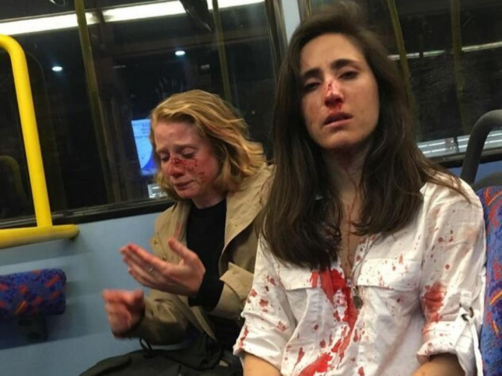 Imagen compartida por Melania Geymonat tras la agresión homófoba en un autobús de Londres.