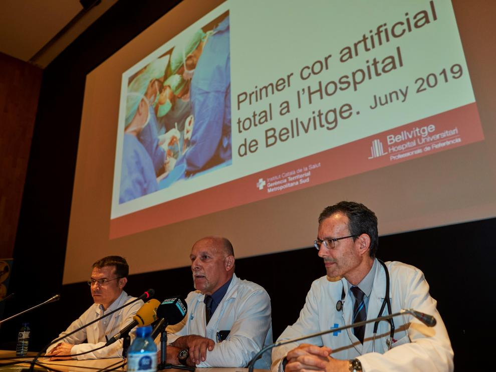 El jefe del Servicio de Cirugía cardíaca, Albert Miralles, con los doctores DAniel Ortiz y Josep Gonzáliz, durante la rueda prensa ofrecida en el Hospital de Bellvitge, de L'Hospitalet de Llobregat.