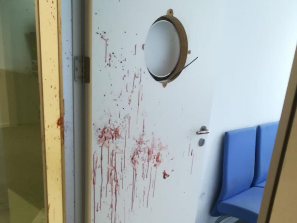 El joven dejó un enorme rastro de sangre en la puerta, de la que arrancó la claraboya a golpes.