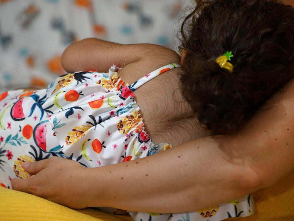 Una de las niñas afectadas por hipertricosis