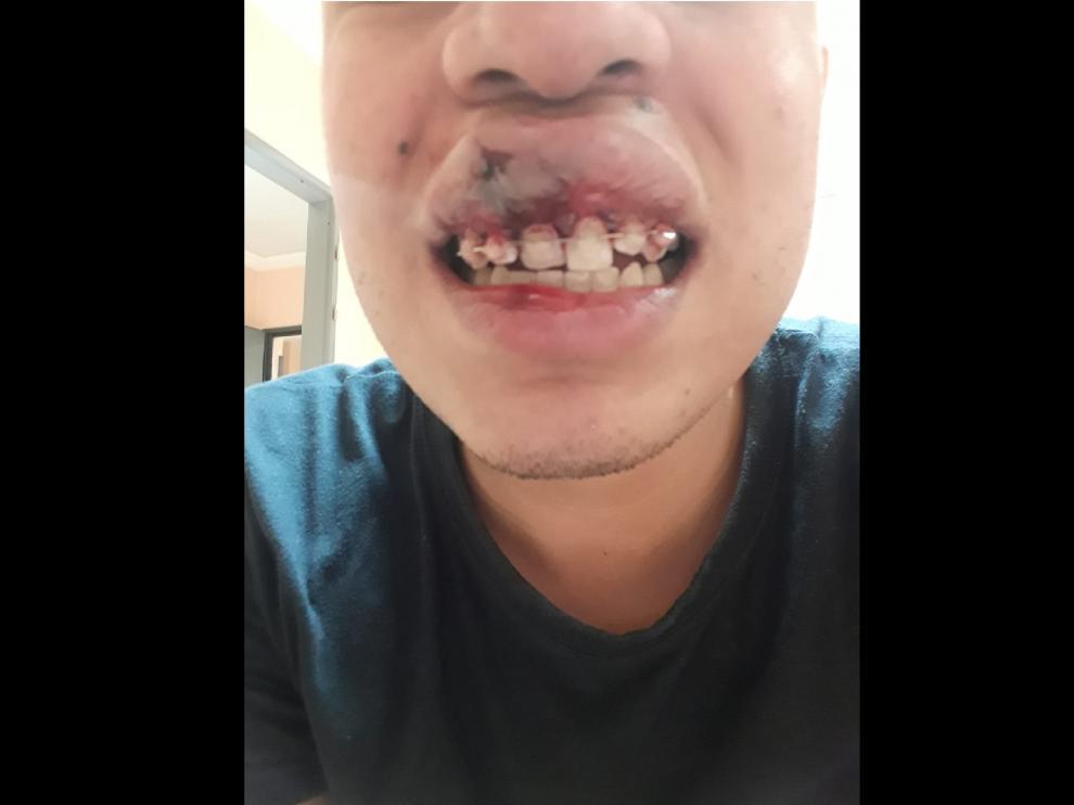 Estado en el que quedó la boca de la víctima tras sufrir la agresión durante el partido de fútbol.
