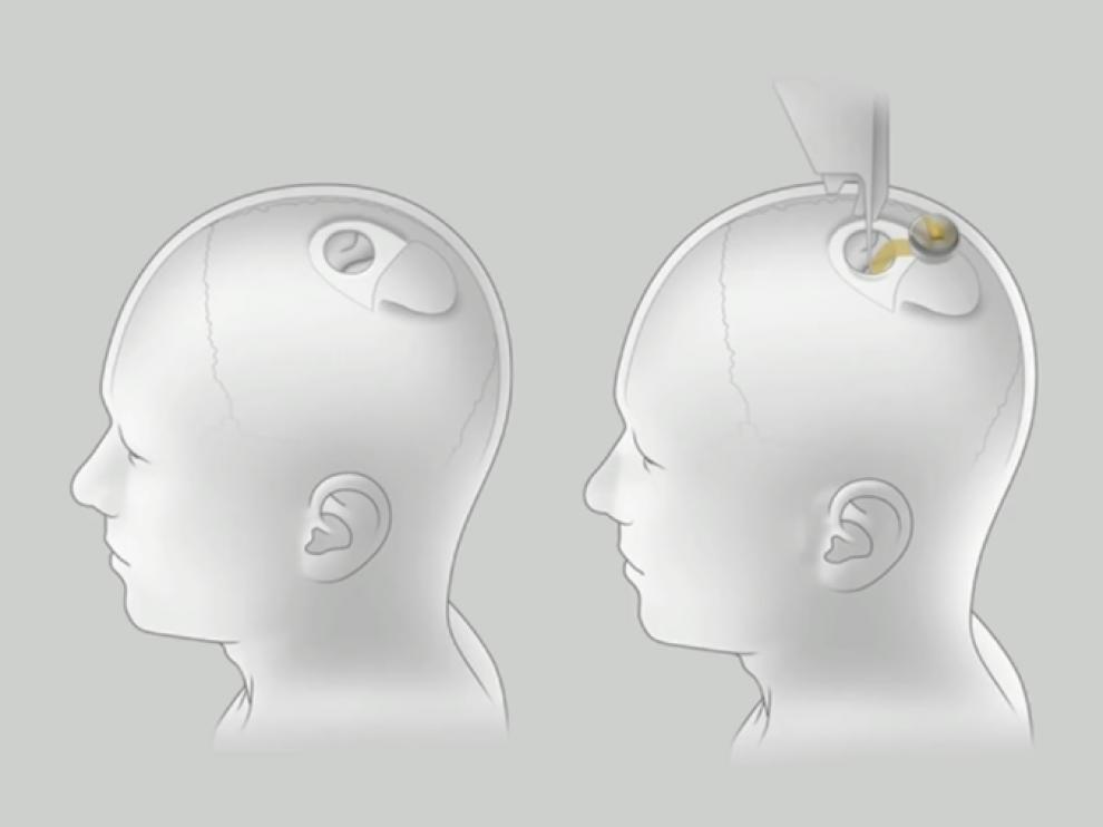 Han probado con éxito en cerdos un chip que implantado en el cráneo permite medir la actividad cerebral