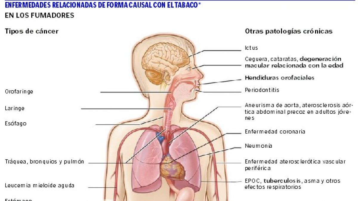 tipos de enfermedades del tabaco